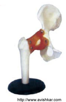 product/Physiological Models/Hip-Joint.jpg