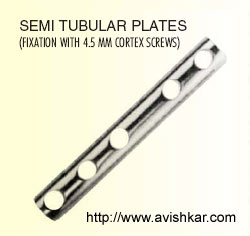 Plates for Large Screws